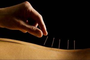curso medicina tradicional china - acupuntura